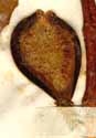 Ficus carica L., cross-section of inflorescens x5